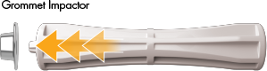 RefToe-ST-prep02image